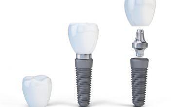Implanty 1
