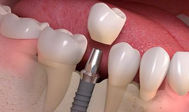 Implanty 6